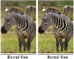 amblyopia vagy myopia idegrendszeri látás